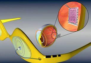 В Австралии создан цифровой бионический глаз